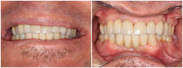 AfterCosmetic Dentistry