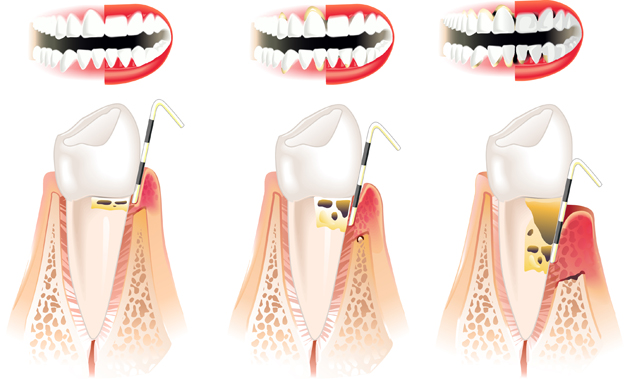 Gingivitis & Tooth Infection Treatment Central Coast