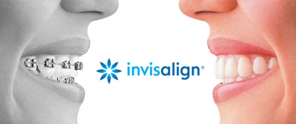 Invisalign at Terrigal Beach Dental