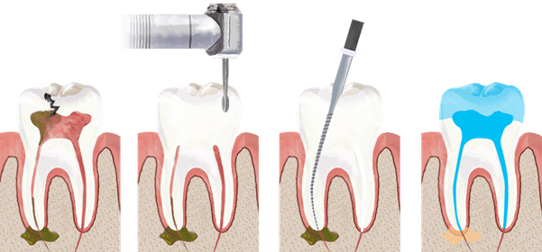 Root Canal Procedure - TBD